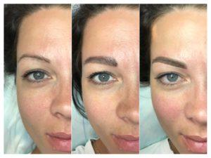 На фото изображение до процедуры, макет клиента и результат работы мастера.