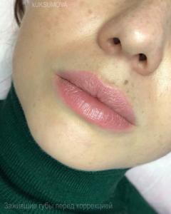 Зашивший татуаж губ перед коррекцией.